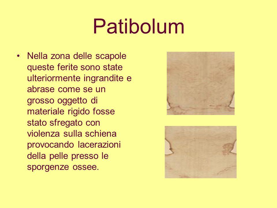 Patibolum Nella zona delle scapole queste ferite sono state ulteriormente ingrandite e abrase come se un grosso oggetto di materiale rigido fosse stat
