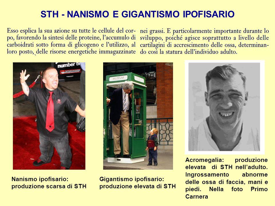 STH - NANISMO E GIGANTISMO IPOFISARIO Nanismo ipofisario: produzione scarsa di STH Gigantismo ipofisario: produzione elevata di STH Acromegalia: produ