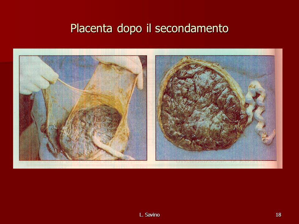 L. Savino18 Placenta dopo il secondamento