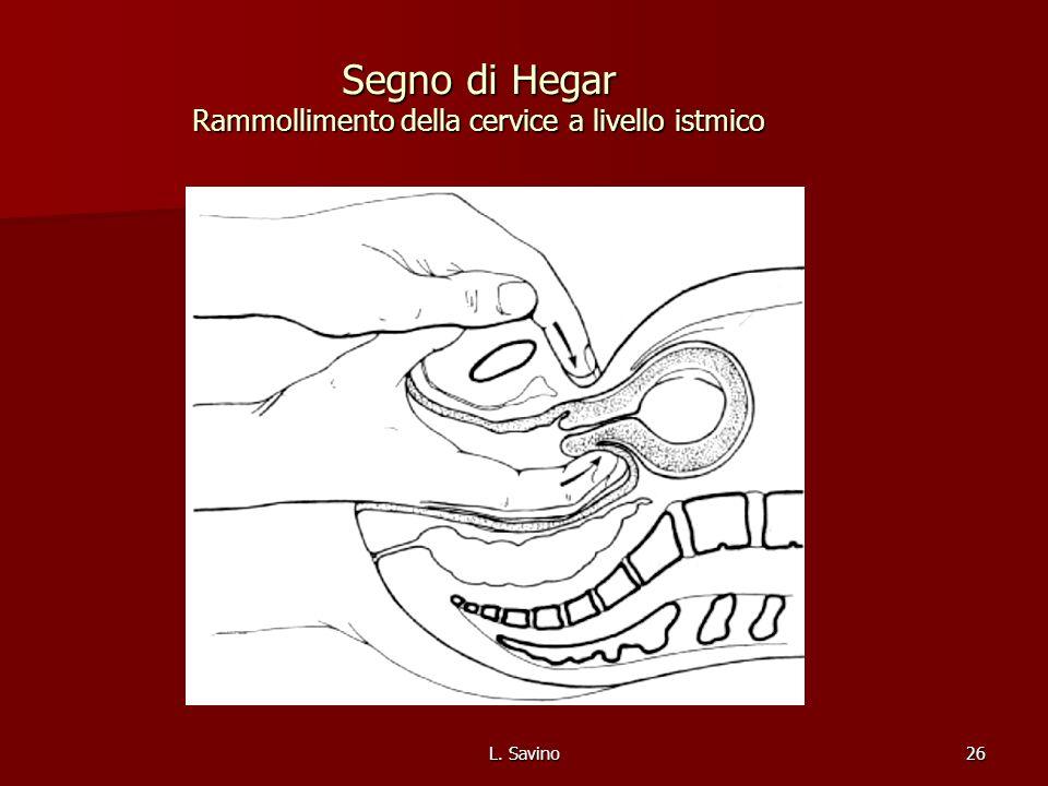 L. Savino26 Segno di Hegar Rammollimento della cervice a livello istmico