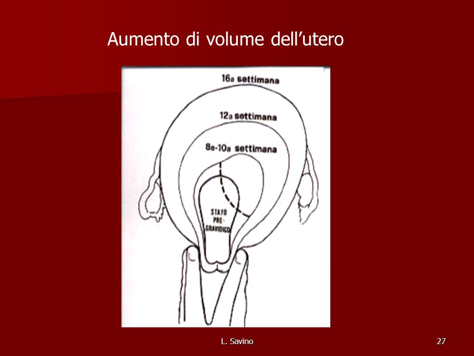 L. Savino27 Aumento di volume dellutero