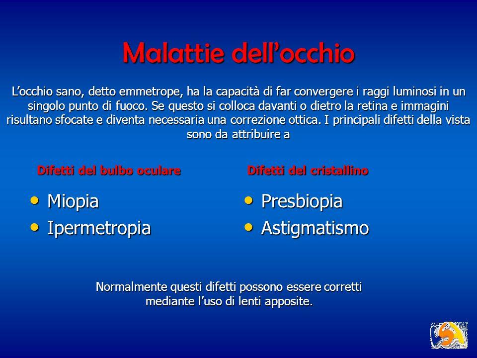 Malattie dellocchio Miopia Miopia Ipermetropia Ipermetropia Presbiopia Presbiopia Astigmatismo Astigmatismo Locchio sano, detto emmetrope, ha la capac