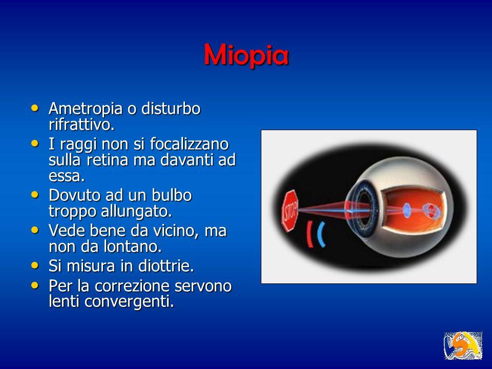 Miopia Ametropia o disturbo rifrattivo. Ametropia o disturbo rifrattivo. I raggi non si focalizzano sulla retina ma davanti ad essa. I raggi non si fo