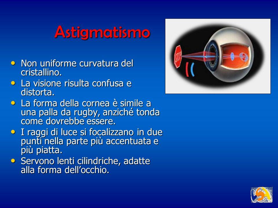 Astigmatismo Non uniforme curvatura del cristallino. Non uniforme curvatura del cristallino. La visione risulta confusa e distorta. La visione risulta