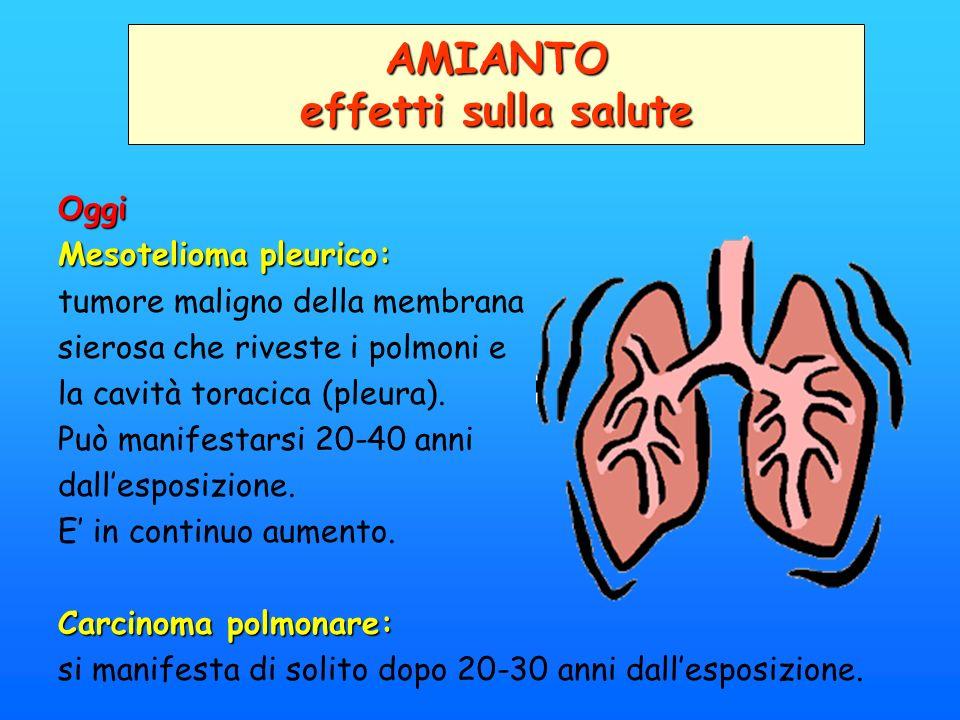 Oggi Mesotelioma pleurico: tumore maligno della membrana sierosa che riveste i polmoni e la cavità toracica (pleura). Può manifestarsi 20-40 anni dall