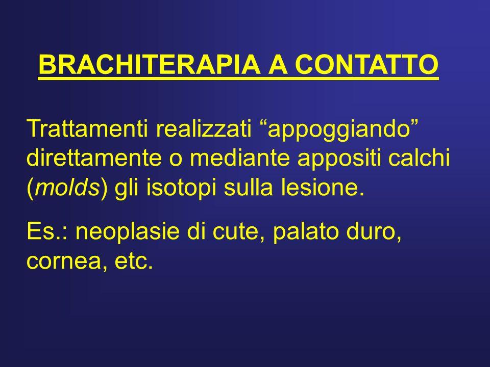 BRACHITERAPIA A CONTATTO Trattamenti realizzati appoggiando direttamente o mediante appositi calchi (molds) gli isotopi sulla lesione. Es.: neoplasie