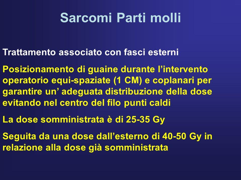 Sarcomi Parti molli Trattamento associato con fasci esterni Posizionamento di guaine durante lintervento operatorio equi-spaziate (1 CM) e coplanari p