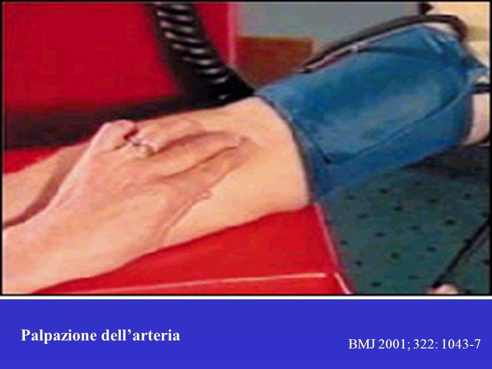 BMJ 2001; 322: 1043-7 Palpazione dellarteria