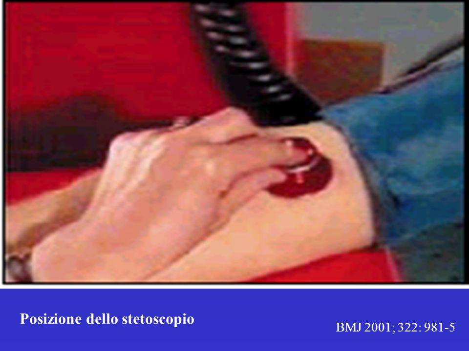 BMJ 2001; 322: 981-5 Posizione dello stetoscopio
