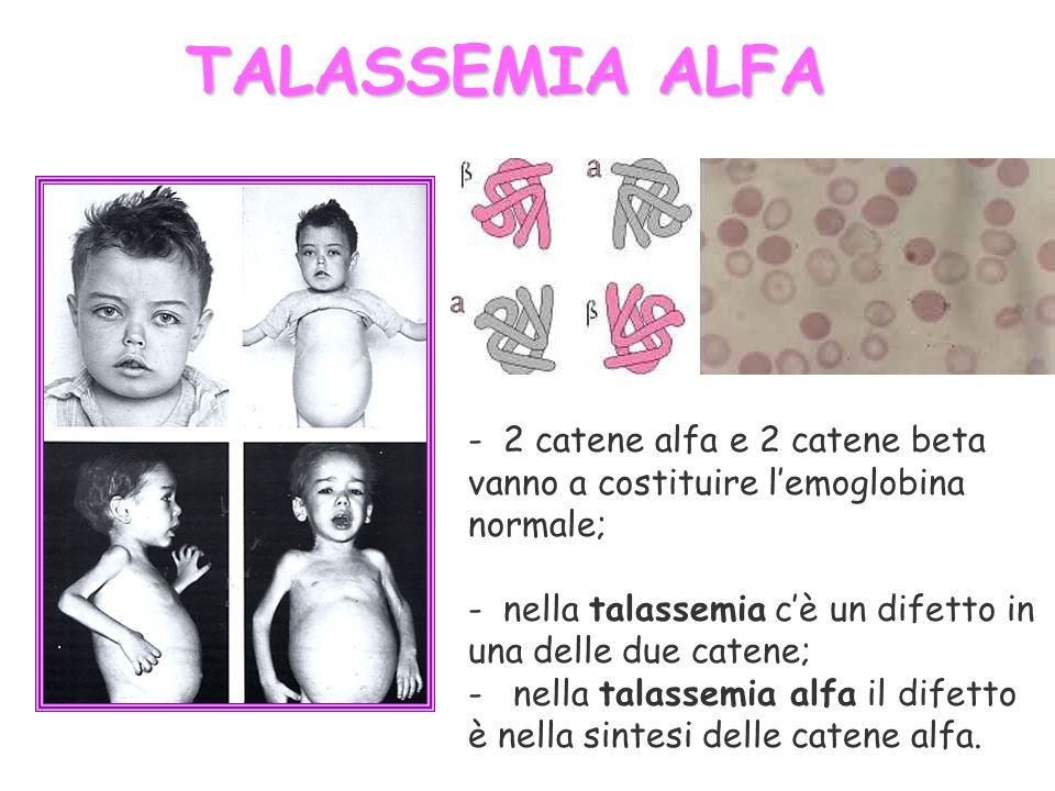 TALASSEMIA ALFA - 2 catene alfa e 2 catene beta vanno a costituire lemoglobina normale; - nella talassemia cè un difetto in una delle due catene; - ne