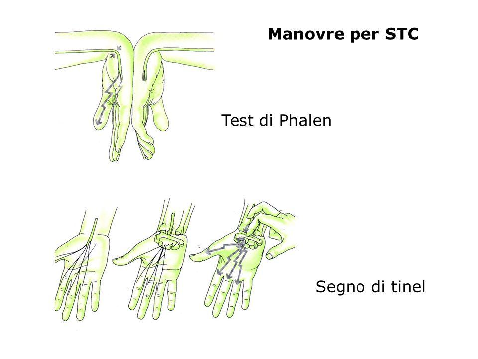 Segno di tinel Manovre per STC Test di Phalen