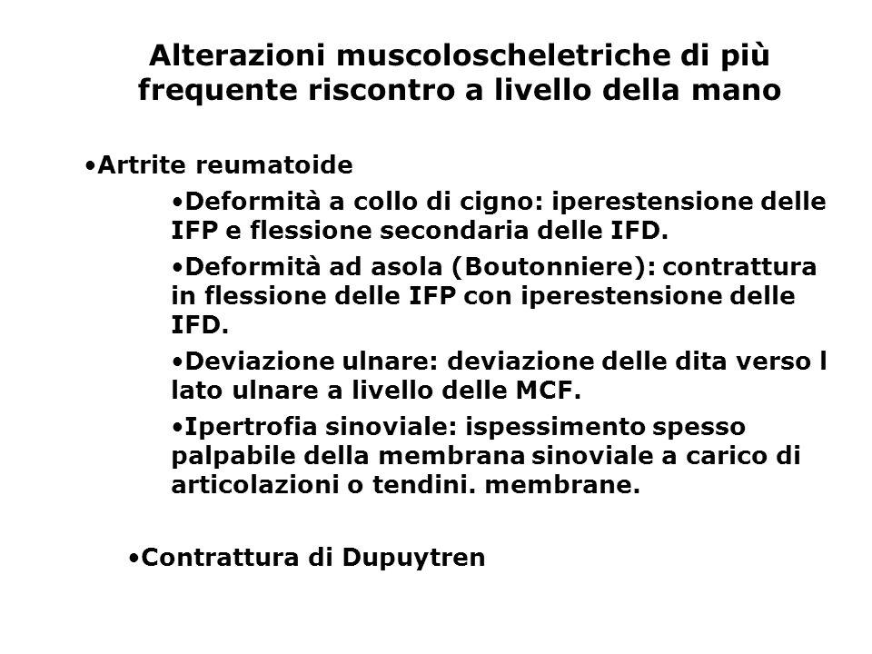 Alterazioni muscoloscheletriche di più frequente riscontro a livello della mano Artrite reumatoide Deformità a collo di cigno: iperestensione delle IF