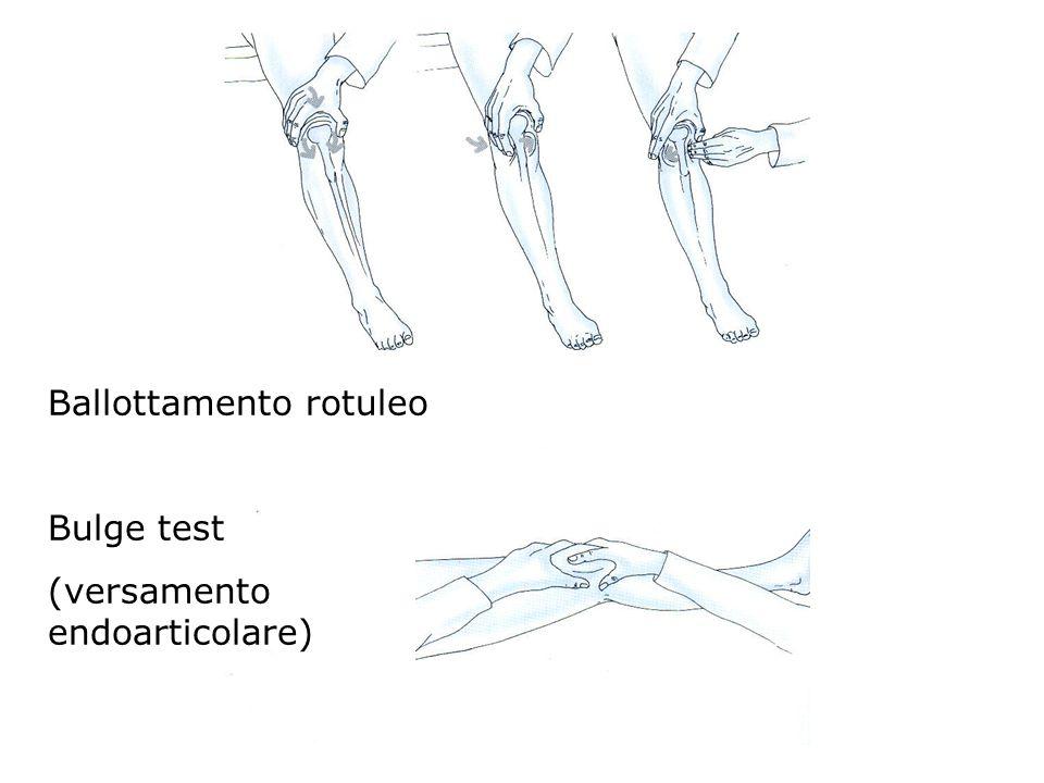 Ballottamento rotuleo Bulge test (versamento endoarticolare)