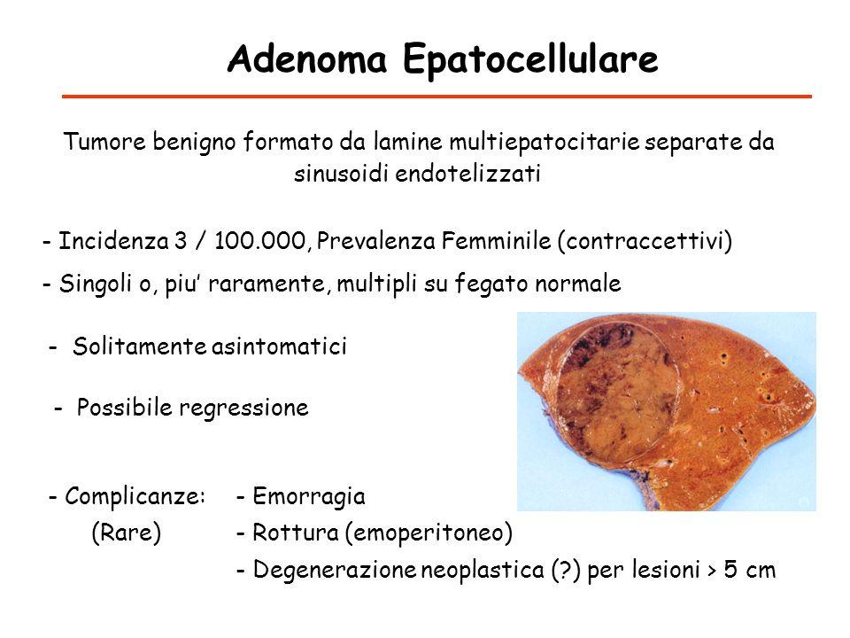 Adenoma Epatocellulare - Incidenza 3 / 100.000, Prevalenza Femminile (contraccettivi) Tumore benigno formato da lamine multiepatocitarie separate da s