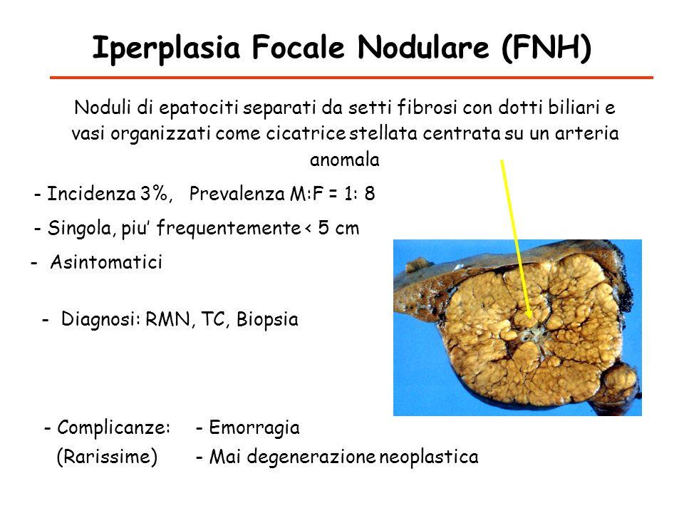 Iperplasia Focale Nodulare (FNH) - Incidenza 3%, Prevalenza M:F = 1: 8 Noduli di epatociti separati da setti fibrosi con dotti biliari e vasi organizz