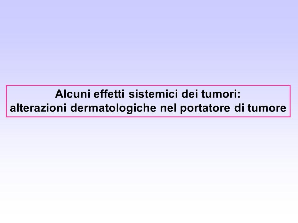 Alcuni effetti sistemici dei tumori: alterazioni dermatologiche nel portatore di tumore
