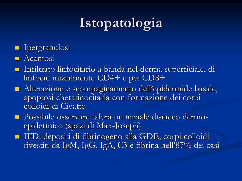 Istopatologia Ipergranulosi Ipergranulosi Acantosi Acantosi Infiltrato linfocitario a banda nel derma superficiale, di linfociti inizialmente CD4+ e p