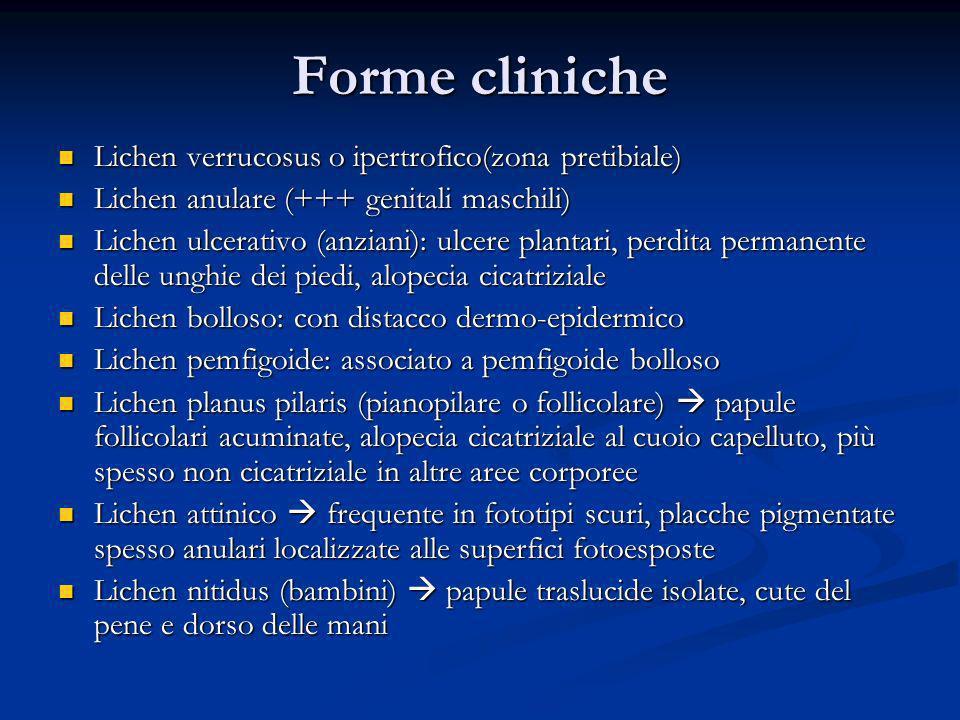 Forme cliniche Lichen verrucosus o ipertrofico(zona pretibiale) Lichen verrucosus o ipertrofico(zona pretibiale) Lichen anulare (+++ genitali maschili