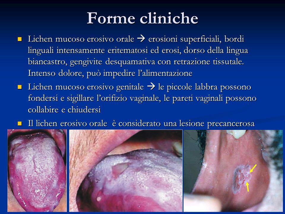 Forme cliniche Lichen mucoso erosivo orale erosioni superficiali, bordi linguali intensamente eritematosi ed erosi, dorso della lingua biancastro, gen