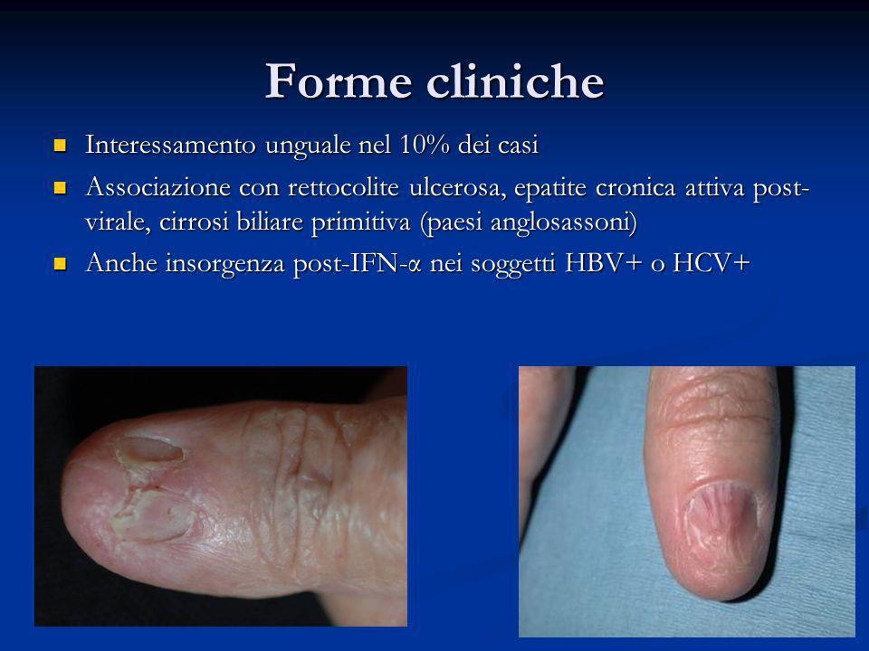 Forme cliniche Interessamento unguale nel 10% dei casi Interessamento unguale nel 10% dei casi Associazione con rettocolite ulcerosa, epatite cronica