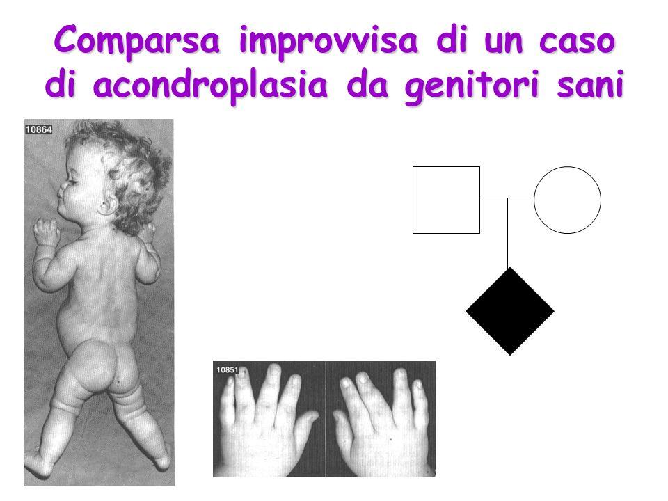 Comparsa improvvisa di un caso di acondroplasia da genitori sani