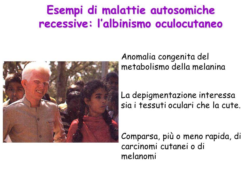 Esempi di malattie autosomiche recessive: lalbinismo oculocutaneo Anomalia congenita del metabolismo della melanina La depigmentazione interessa sia i