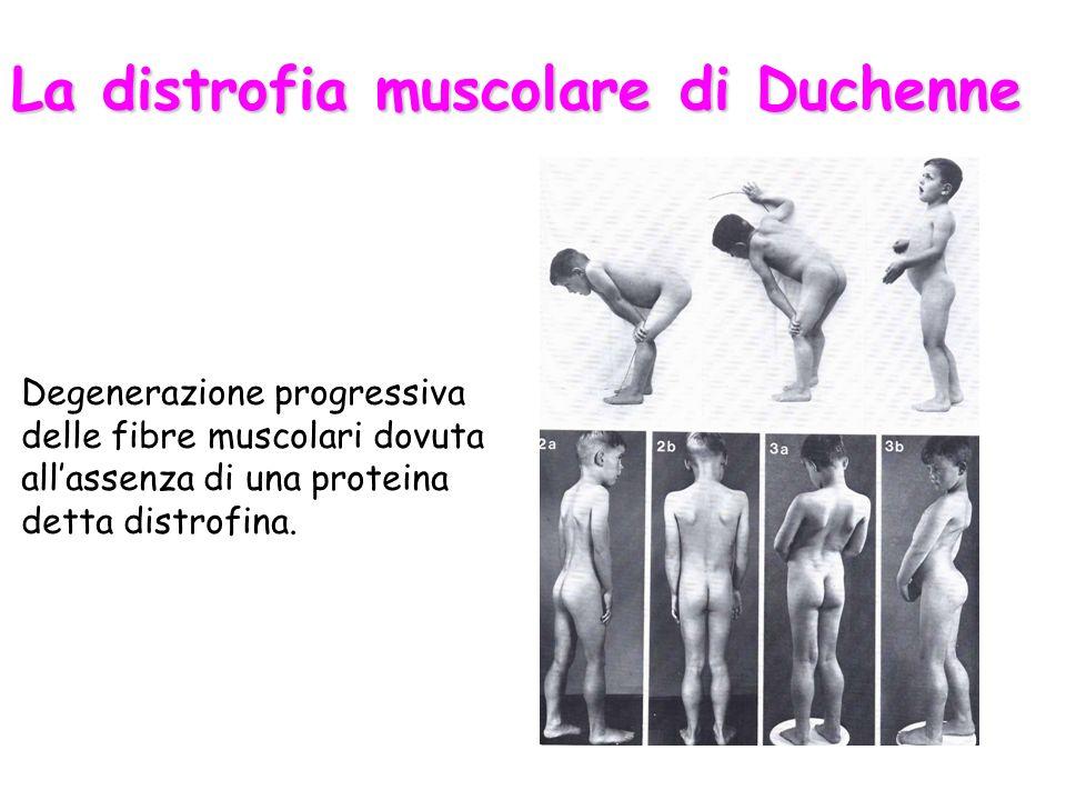 La distrofia muscolare di Duchenne Degenerazione progressiva delle fibre muscolari dovuta allassenza di una proteina detta distrofina.