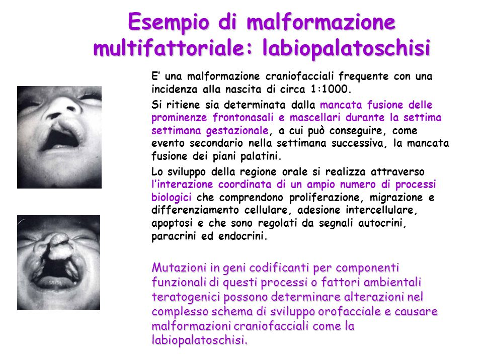 Esempio di malformazione multifattoriale: labiopalatoschisi E una malformazione craniofacciali frequente con una incidenza alla nascita di circa 1:100