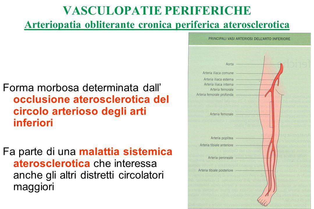 Forma morbosa determinata dall occlusione aterosclerotica del circolo arterioso degli arti inferiori Fa parte di una malattia sistemica aterosclerotica che interessa anche gli altri distretti circolatori maggiori VASCULOPATIE PERIFERICHE Arteriopatia obliterante cronica periferica aterosclerotica