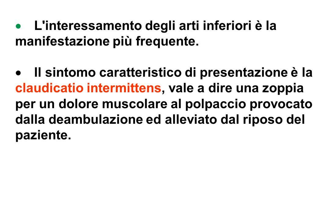 L interessamento degli arti inferiori è la manifestazione più frequente.