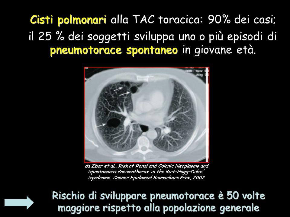 Cisti polmonari Cisti polmonari alla TAC toracica: 90% dei casi; pneumotorace spontaneo il 25 % dei soggetti sviluppa uno o più episodi di pneumotorac
