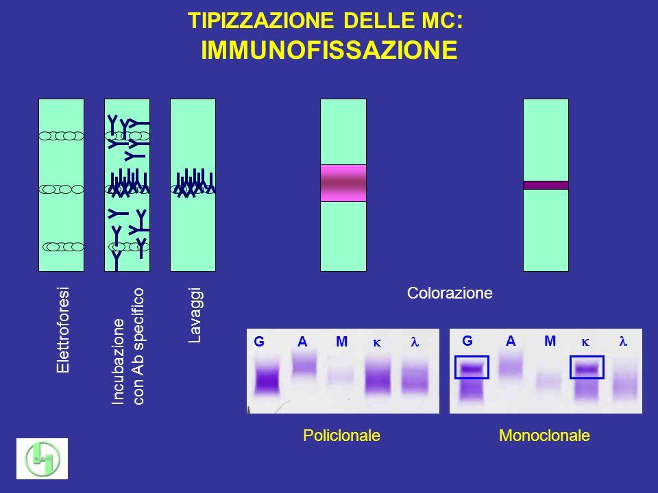 TIPIZZAZIONE DELLE MC : IMMUNOFISSAZIONE Elettroforesi Incubazione con Ab specifico Lavaggi Colorazione Policlonale G A M Monoclonale G A M