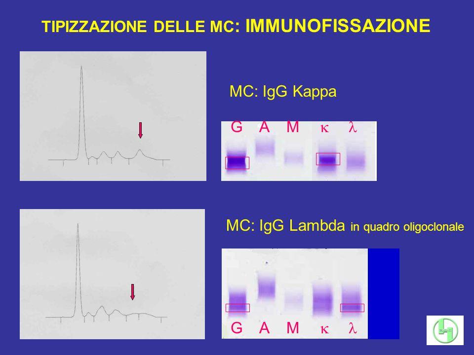 MC: IgG Lambda in quadro oligoclonale TIPIZZAZIONE DELLE MC : IMMUNOFISSAZIONE MC: IgG Kappa G A M