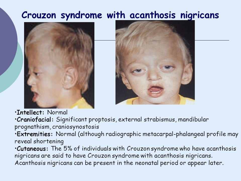 Crouzon syndrome with acanthosis nigricans Intellect: Normal Craniofacial: Significant proptosis, external strabismus, mandibular prognathism, cranios