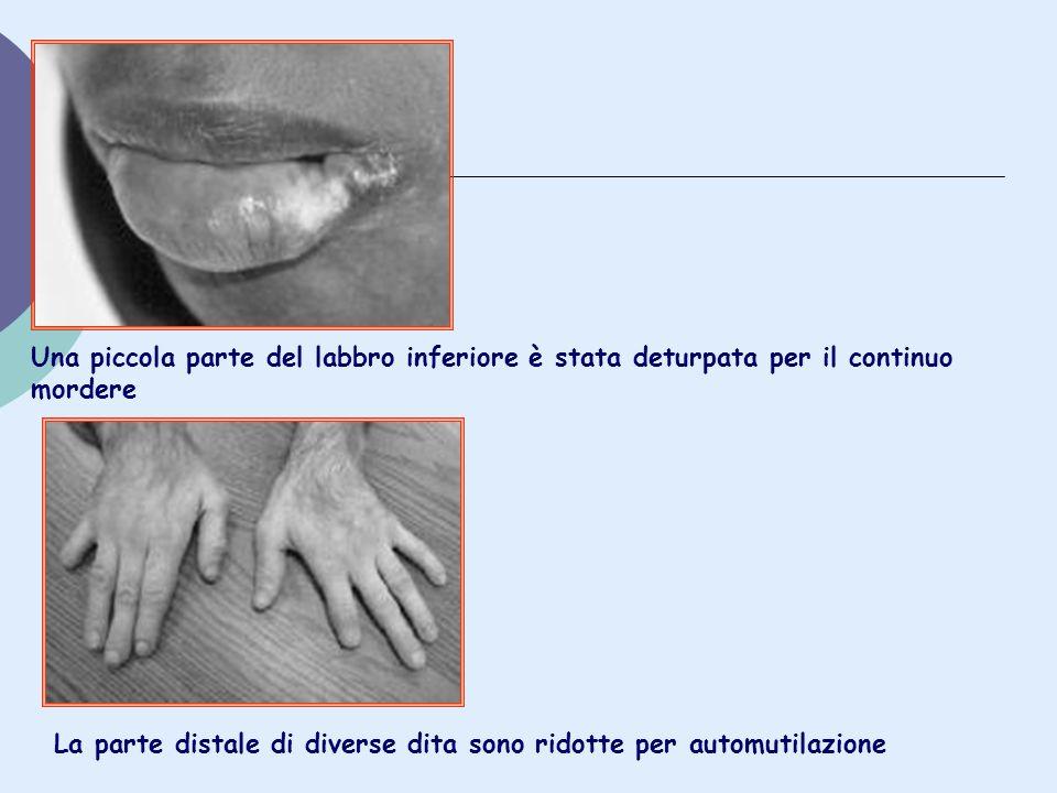 Una piccola parte del labbro inferiore è stata deturpata per il continuo mordere La parte distale di diverse dita sono ridotte per automutilazione