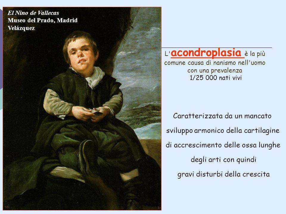 El Nino de Vallecas Museo del Prado, Madrid Velázquez L' acondroplasia è la più comune causa di nanismo nell'uomo con una prevalenza 1/25 000 nati viv