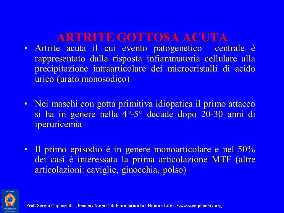 ARTRITE GOTTOSA ACUTA Artrite acuta il cui evento patogenetico centrale è rappresentato dalla risposta infiammatoria cellulare alla precipitazione int