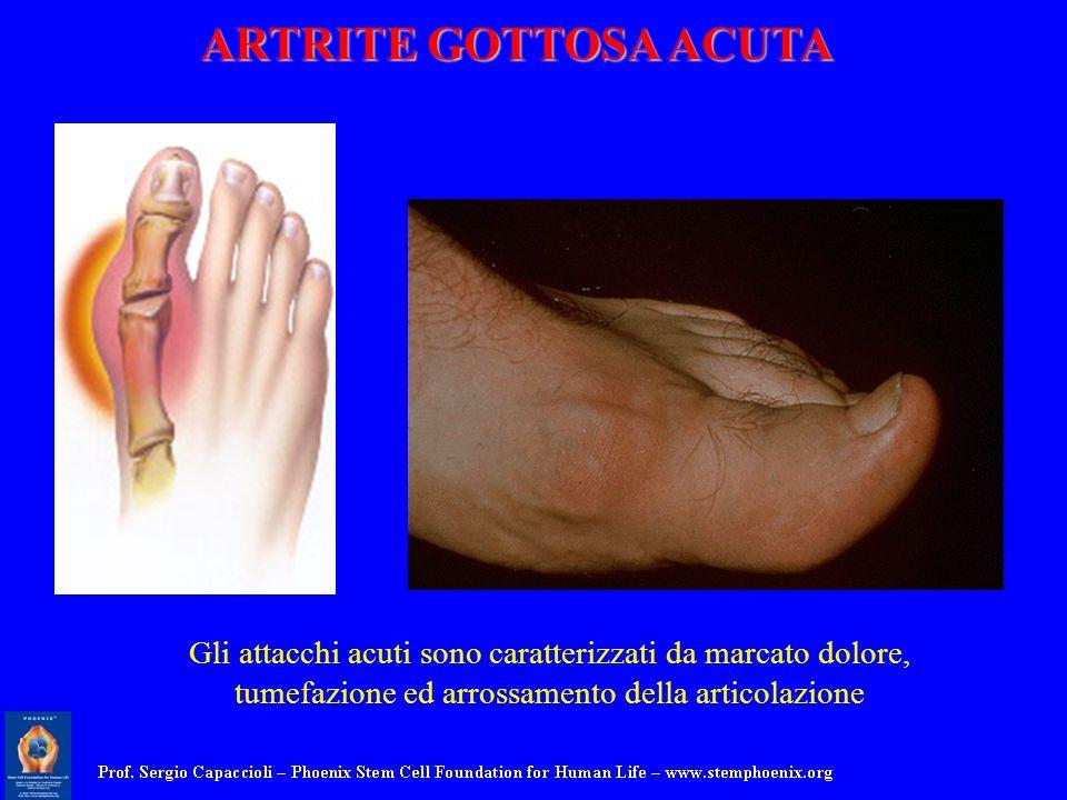 ARTRITE GOTTOSA ACUTA Gli attacchi acuti sono caratterizzati da marcato dolore, tumefazione ed arrossamento della articolazione