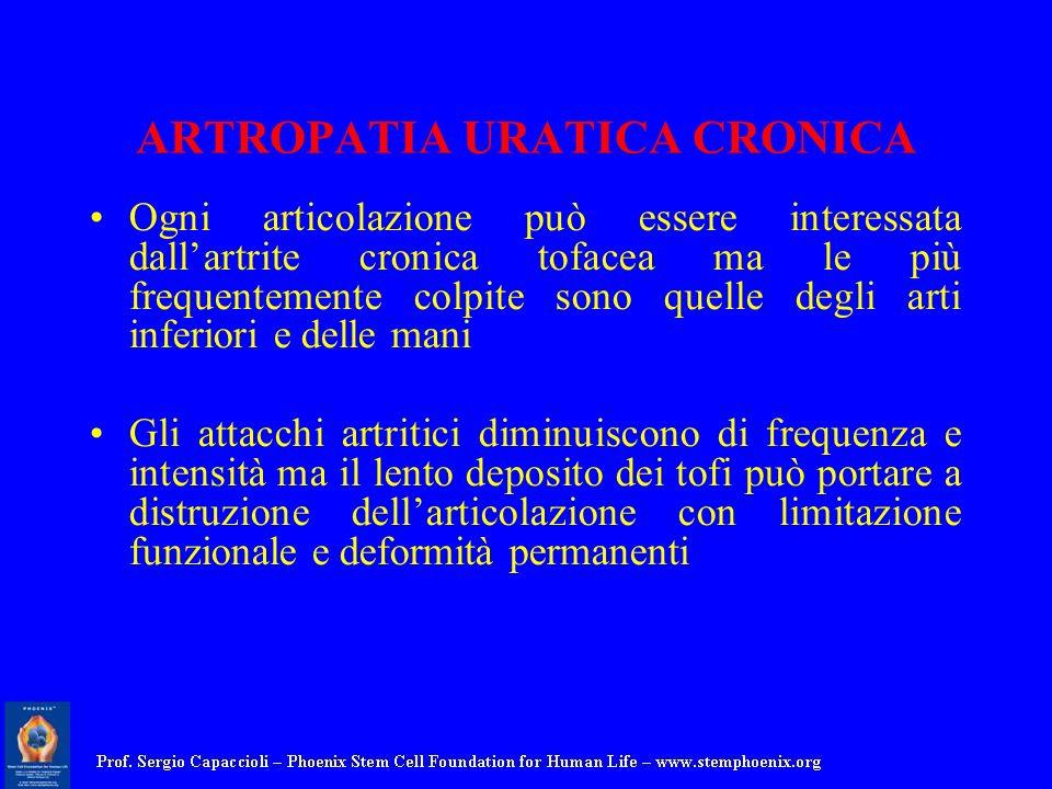 ARTROPATIA URATICA CRONICA Ogni articolazione può essere interessata dallartrite cronica tofacea ma le più frequentemente colpite sono quelle degli ar