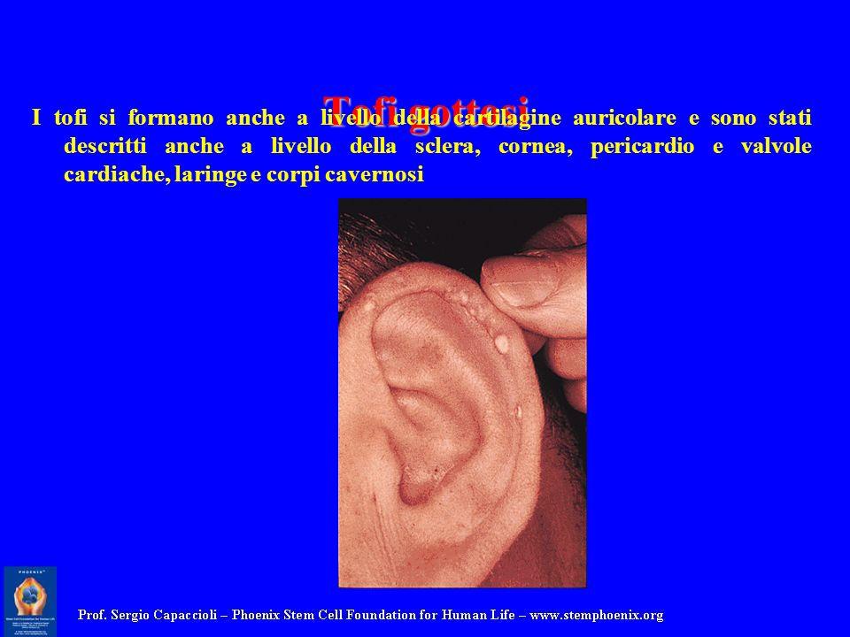 Tofi gottosi I tofi si formano anche a livello della cartilagine auricolare e sono stati descritti anche a livello della sclera, cornea, pericardio e