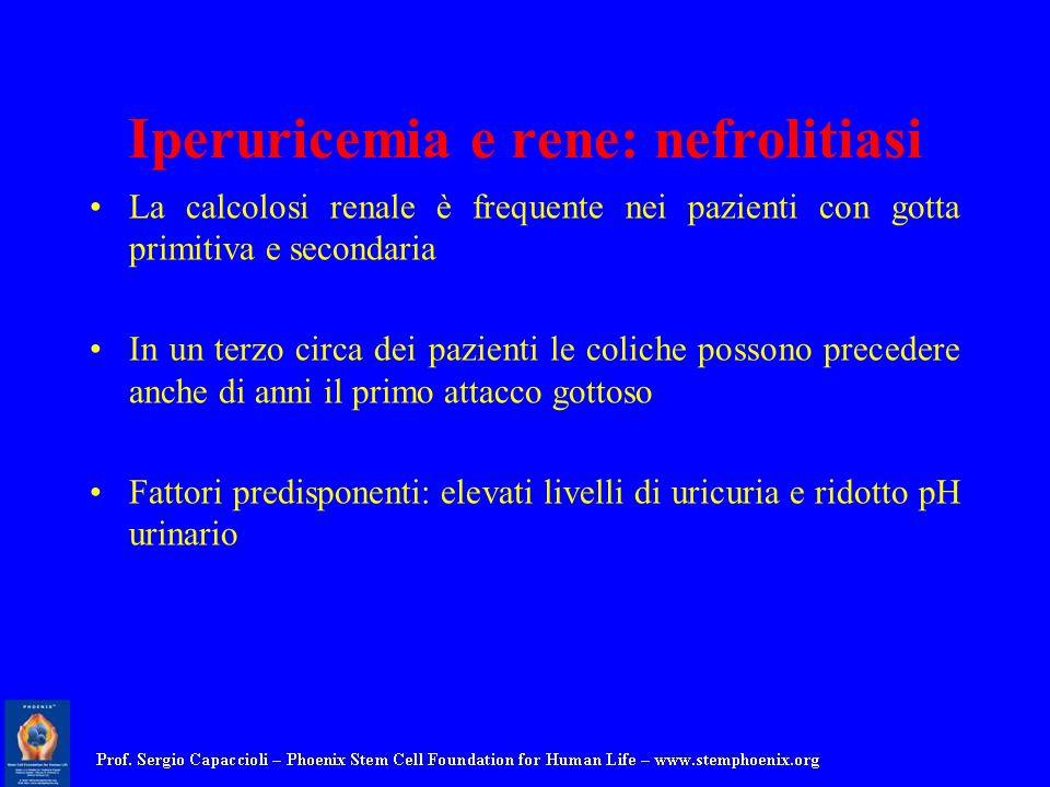 Iperuricemia e rene: nefrolitiasi La calcolosi renale è frequente nei pazienti con gotta primitiva e secondaria In un terzo circa dei pazienti le coli
