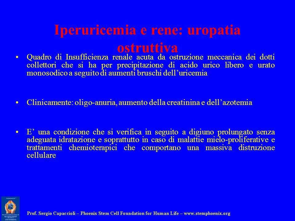 Iperuricemia e rene: uropatia ostruttiva Quadro di Insufficienza renale acuta da ostruzione meccanica dei dotti collettori che si ha per precipitazion