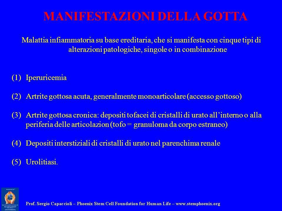 Malattia infiammatoria su base ereditaria, che si manifesta con cinque tipi di alterazioni patologiche, singole o in combinazione (1)Iperuricemia (2)A