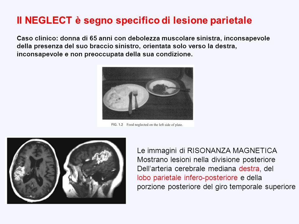 Il NEGLECT è segno specifico di lesione parietale Caso clinico: donna di 65 anni con debolezza muscolare sinistra, inconsapevole della presenza del su