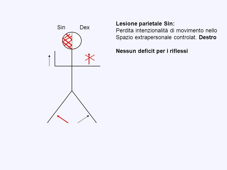 Sin Dex Lesione parietale Sin: Perdita intenzionalità di movimento nello Spazio extrapersonale controlat. Destro Nessun deficit per i riflessi