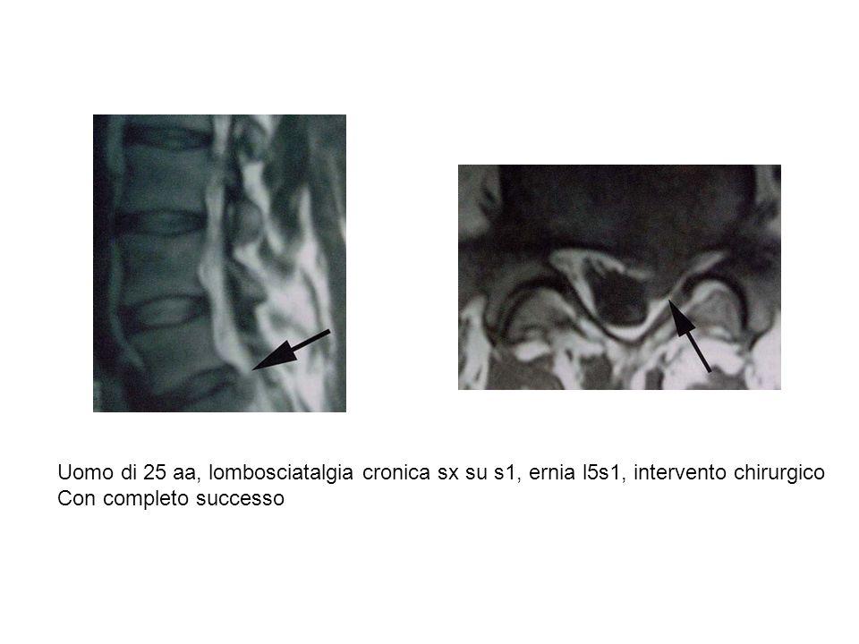 Uomo di 25 aa, lombosciatalgia cronica sx su s1, ernia l5s1, intervento chirurgico Con completo successo