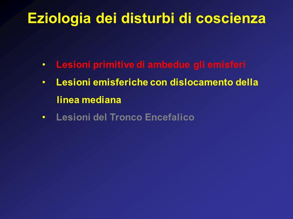 Eziologia dei disturbi di coscienza Lesioni primitive di ambedue gli emisferi Lesioni emisferiche con dislocamento della linea mediana Lesioni del Tronco Encefalico