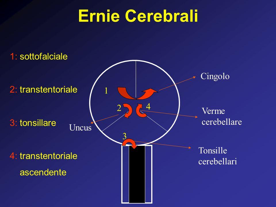 Ernie Cerebrali 1 2 3 Cingolo Uncus Tonsille cerebellari 1: sottofalciale 2: transtentoriale 3: tonsillare 4: transtentoriale ascendente Verme cerebellare 4