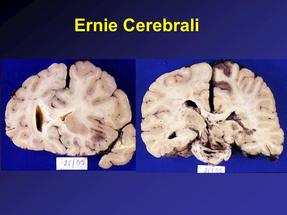 Ernie Cerebrali