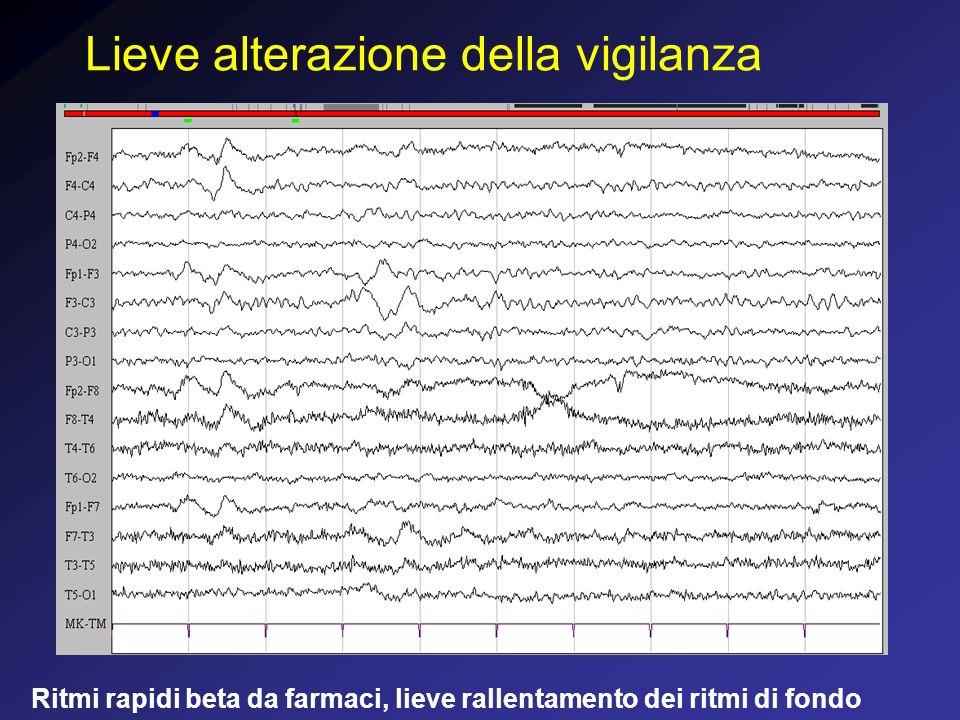 Coma post traumatico, profondità medio - lieve prevalenza di onde theta, ed in minor misura delta uniformemente distribuiti